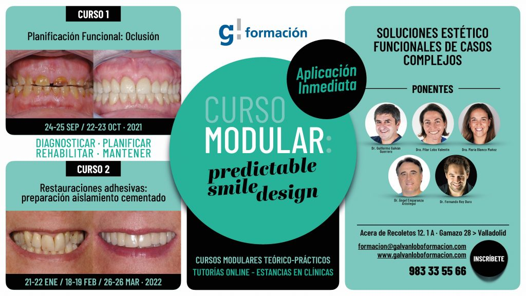 Curso Predictable Smile Design